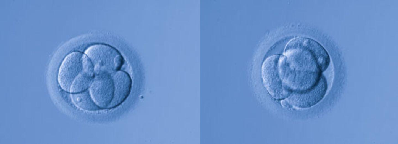 Briten erlauben Genmanipulation von Embryos