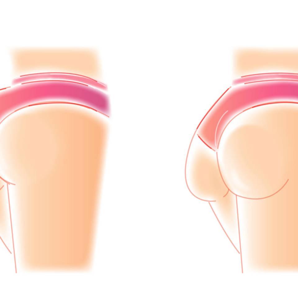 Das verrät deine Po-Form über deine Gesundheit