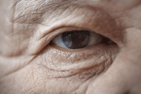 Erschreckend: So sehr lässt die Sonne unsere Haut altern