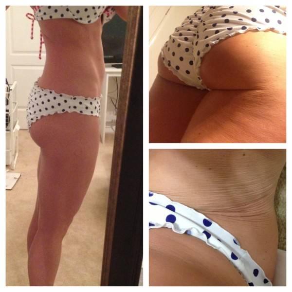 Makellos? Nö!: Cellulite? Spreckröllchen? Diese Frauen zeigen uns die Wahrheit!
