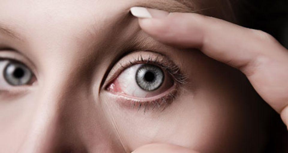 Was gegen dicke Augen hilft