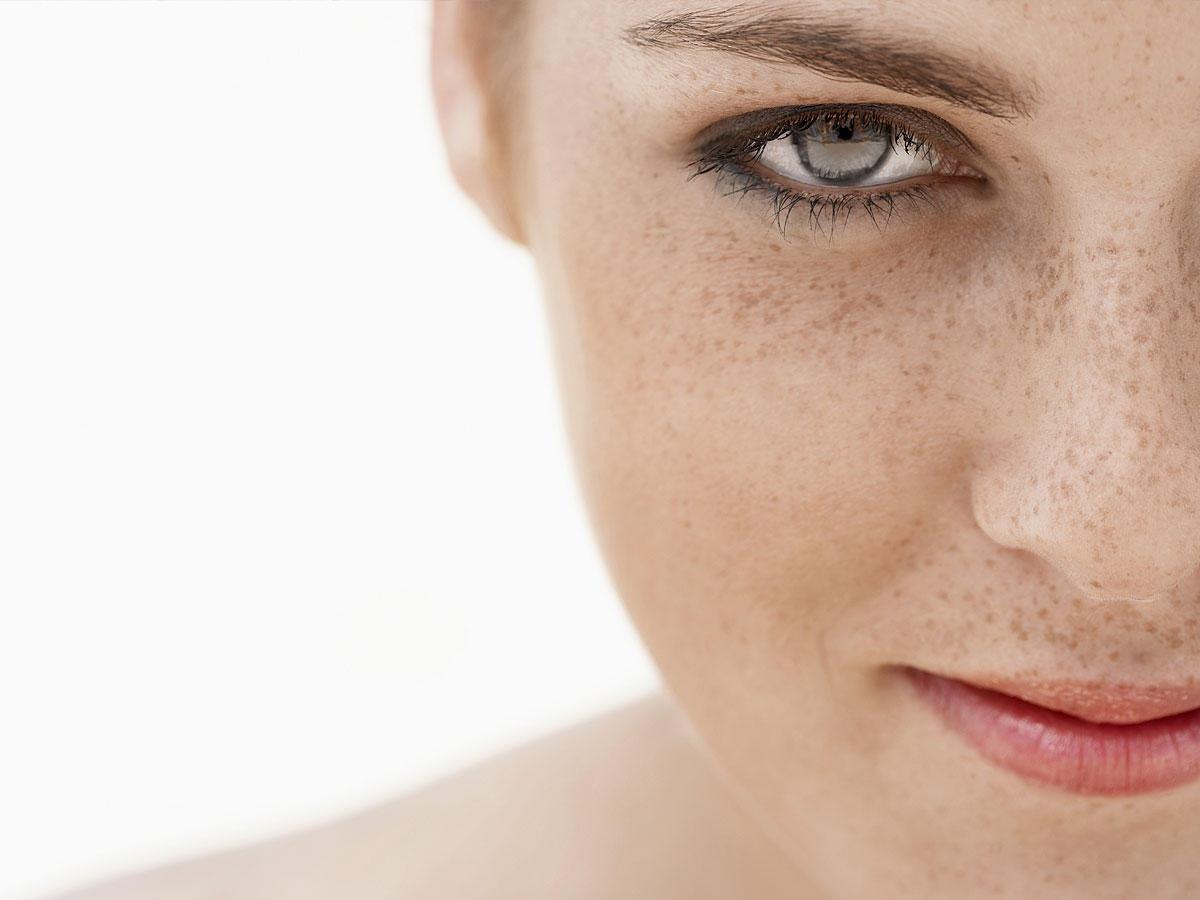 Tipps und Tricks bei unreiner Haut