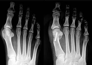 Das linke Bild zeigt einen mittelschweren Ballenzeh und leichten Spreizfuß - typisch für eine 30- bis 35-Jährige, die beginnende Schmerzen an der Fußinnenseite hat. Mit der Chevron-Austin-Operation wurde der Knochen V-förmig durchtrennt, verschoben und mit einer Titanschraube fixiert.