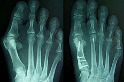 Die Röntgenbilder zeigen einen Spreizfuß mit einem ausgeprägten Ballenzeh. Mit Hilfe einer so genannten Doppel-Korrektur wurde beim großen Zeh eine Stegplatte aus Titan eingesetzt, beim Zeh daneben der Knochen gelenkerhaltend verkürzt und etwas angehoben.