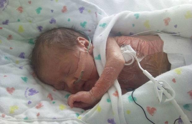 Frühchen-Wunder: Chloe im Alter von acht Wochen