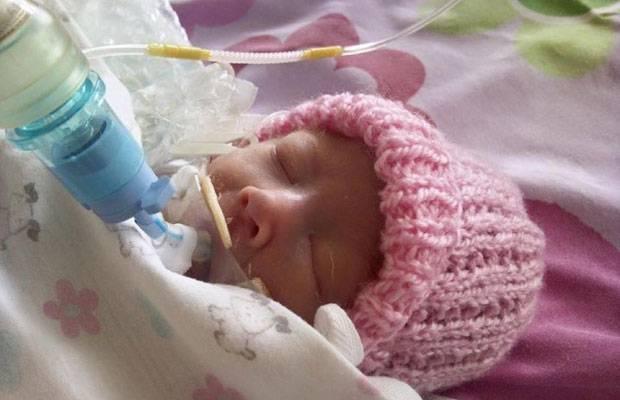 Frühchen-Wunder: Chloe im Alter von vier Wochen