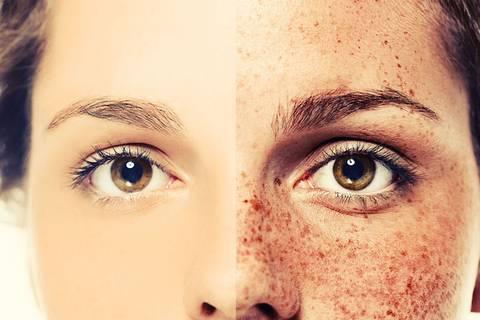 Sind Fake-Sommersprossen der nächste große Beauty-Trend?