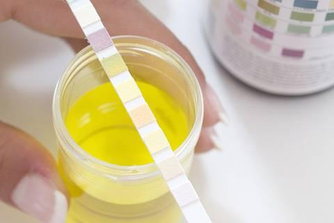 Farbskala: Was die Farbe deines Urins über deine Gesundheit aussagt