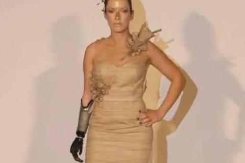 Ihr fehlt der rechte Unterarm - trotzdem ist sie ein erfolgreiches Model!