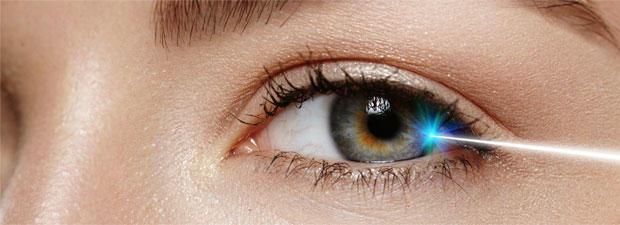 Welche Erfahrungen habt ihr beim Augenlasern gemacht? Fünf Frauen erzählen.