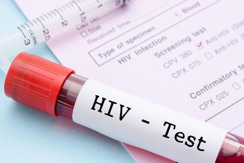 Leben mit der Diagnose HIV: Eine junge Frau erzählt