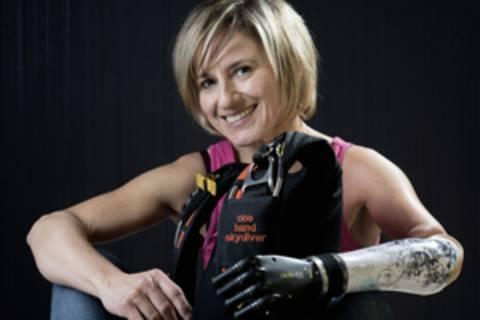 Claudia Breidbach wurde 1970 mit einer Dysmelie am linken Arm geboren, das heißt, ihr fehlt der linke Unterarm. Sie lebt als Diplom-Architektin in Koblenz und hat mit ihrem Fallschirmsprung-Team KARMA an den offiziellen Deutschen Meisterschaften teilgenommen.