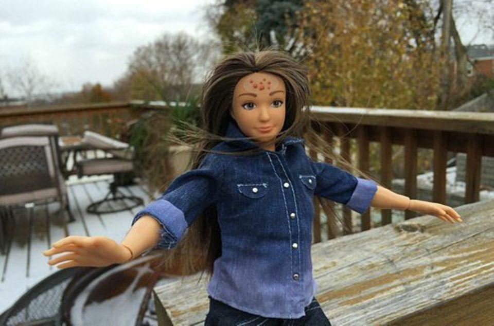 Barbie-Konkurrenz mit Pickeln und Dehnungsstreifen