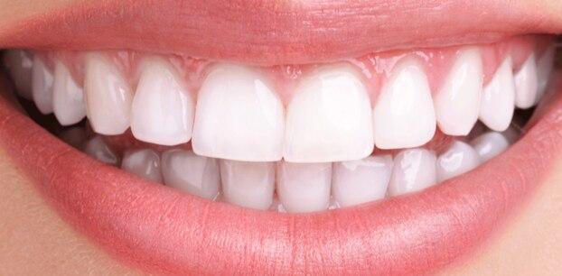 Statt Zahnpasta: Strahlend weiße Zähne