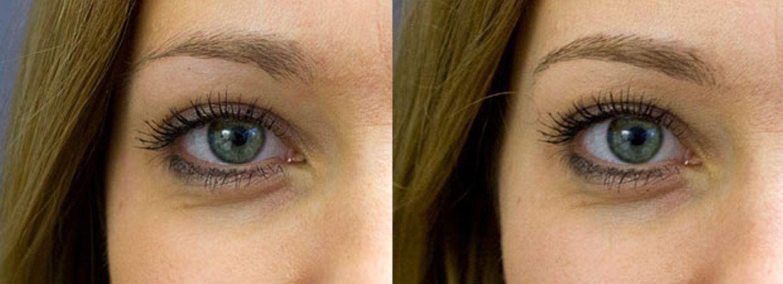 Wie funktionieren Augenbrauen-Extensions?