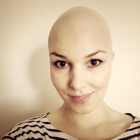 Brustkrebs mit Anfang 20? Kein Grund, sich das Leben vermiesen zu lassen