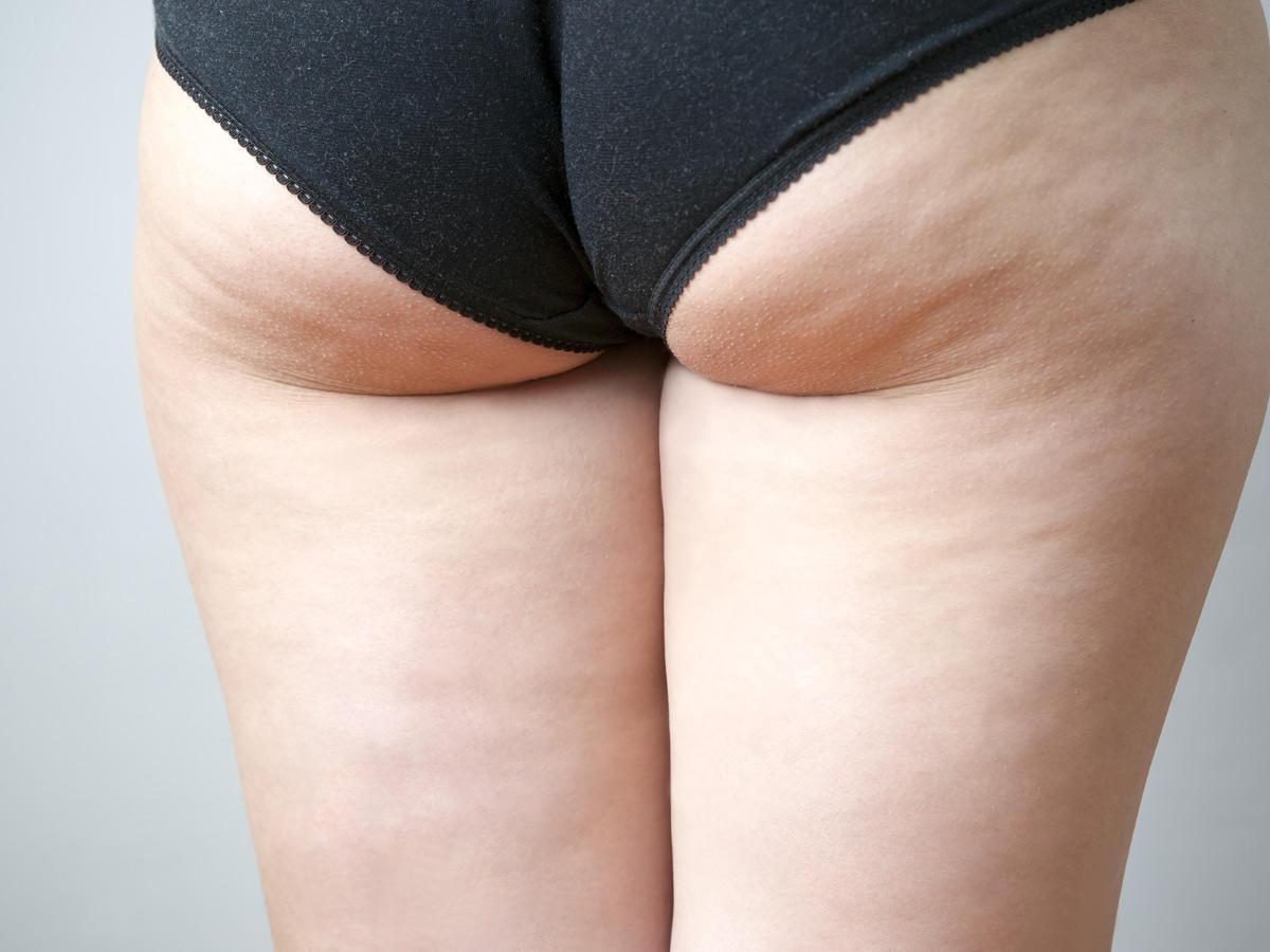 Cellulite und Co.: So sehen Oberschenkel wirklich aus!