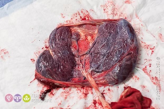 Plazenta-Fotos: Großer Auftritt für ein vergängliches Organ
