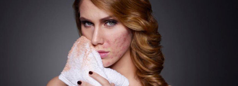 """""""Ich habe meine Akne und meine Unsicherheit unter Make-up versteckt"""""""