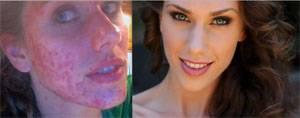 """Unreine Haut: """"Ich habe meine Akne und meine Unsicherheit unter Make-up versteckt"""""""