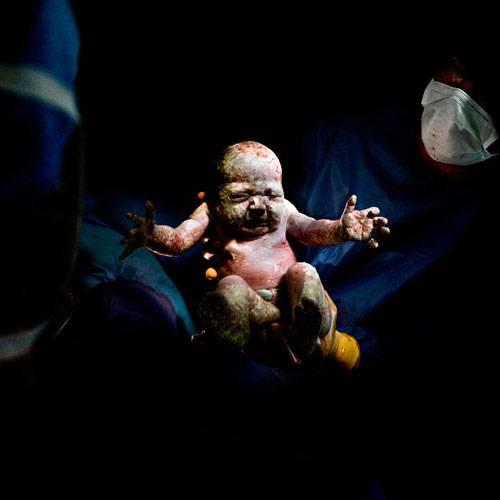 """Sony World Photography Awards 2015: Der kleine Maël ist auf diesem Bild gerade einmal 18 Sekunden alt. Er ist per Kaiserschnitt zu Welt gekommen. Nachdem sein eigener Sohn auf diese Weise das Licht der Welt erblickte, beschloss der französische Fotograf Christian Berthelot, eine Fotoserie über die """"kleinen Kämpfer"""" zu machen."""