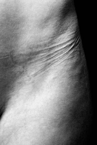 Abdrücke auf unserer Haut