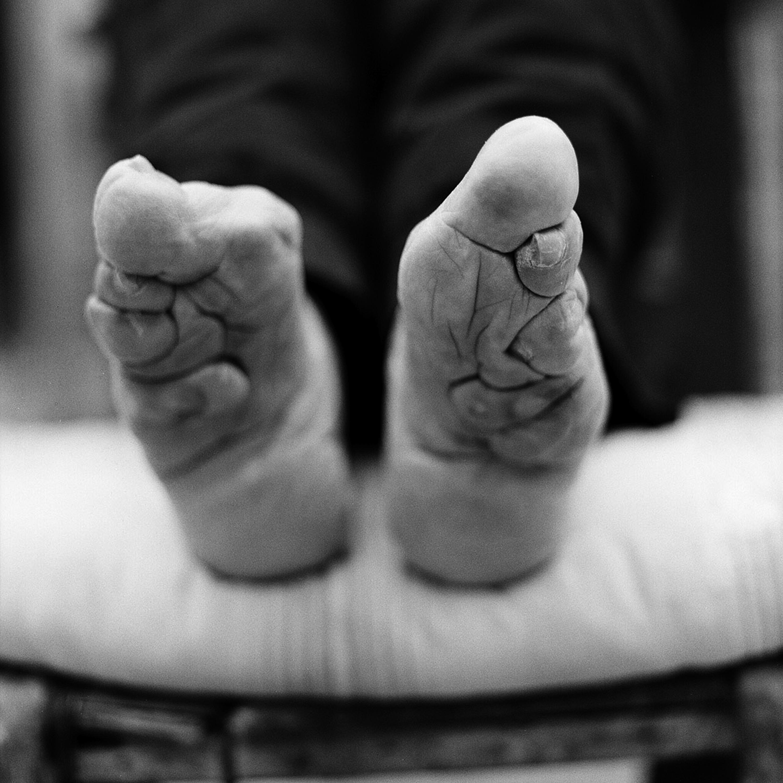 Das Foto und die Behandlung gribka der Nägel der Hände