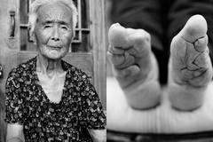 """Qualvolle Tradition: Die letzten Frauen Chinas mit """"Lotusfüßen"""""""
