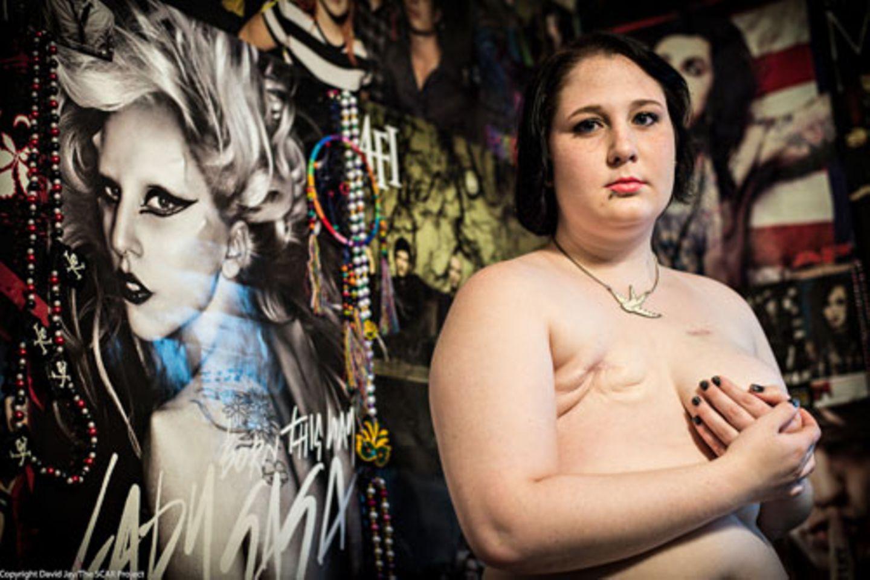 Weltkrebstag: Mit seinen Porträts möchte David Jay für das Thema Brustkrebs bei jungen Frauen sensibilisieren. Denn es ist ein Irrglaube, dass diese Diagnose eher Ältere trifft. Im Gegenteil: Frauen unter 40 erkranken besonders häufig an einem aggressiven Brustkrebs. Und die Wahrscheinlichkeit, dass er wiederkehrt, ist höher als bei älteren Frauen.