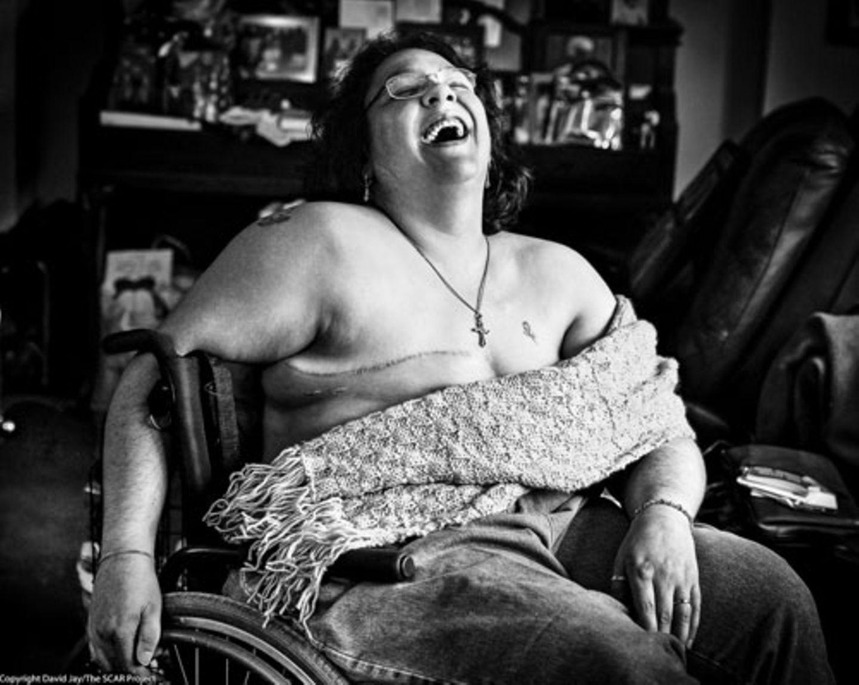"""Weltkrebstag: """"Sich fotografieren zu lassen war für diese Frauen wie ein Sieg über ihre schreckliche Krankheit. Die schlichten Porträts helfen ihnen, ihre Weiblichkeit, Sexualität und Identität wiederzugewinnen. Die Frauen scheinen durch die Bilder das Geschehene ein Stück weit zu akzeptieren. Sie geben ihnen Kraft, mit Stolz nach vorne zu blicken."""""""