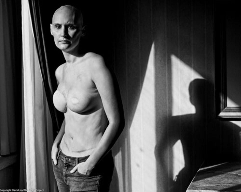 """Weltkrebstag: """"The Scar Project"""" dreht sich nicht allein um Brustkrebs, sondern es steht für mehr - für die Narben, die jeder von uns mit sich trägt. Die Bilder sind eindringlich, für manchen Betrachter vielleicht auch unbequem. """"Sie konfrontieren uns mit unseren Ängsten und Hemmungen gegenüber dem Leben, dem Tod, unserer Sexualität, Krankheiten und Beziehungen. Aber die Realität ist nun mal nicht immer schön"""", so Jay."""