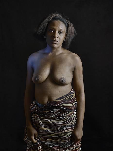 """""""Als meine Brüste anfingen zu wachsen, begannen die Leute in meinem Haus, darüber zu reden. Nachbarn, die Freunde meiner Mutter, die Familie. So viel Gerede! Sogar ich begann, mich dafür zu schämen, weil die Leute darüber sprachen. Irgendwann entschied meine Mutter, meine Brüste zu bügeln. """"Wenn wir sie nicht bügeln, werden sie Männer anlocken. Und wir wissen, dass Männer Schwangerschaften bedeuten können"""", sagte sie. Wir müssen diese Brüste töten, behauptete sie. Sie benutzte heißen Stein auf meiner rechten Brust, dann die der linken, dann auf der rechten. Eine Woche lang. Ich denke, sie hat es gut gemeint. Aber Brüste machen eine Frau erst schön. Meine sind heute schlaff."""" - Carole B. (28)"""