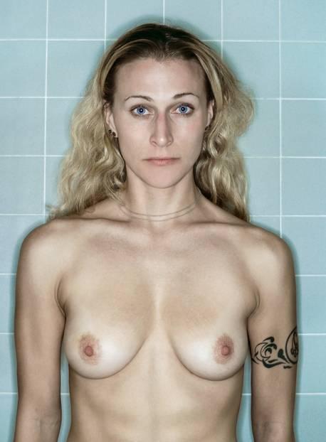 """Brustkrebs: 2005 bekam die Fotografin Kerry Mansfield aus San Francisco die Diagnose: Brustkrebs. Wie damit umgehen? Mansfield wählte den künstlerischen Weg. Sie stellte ihre Kamera im Badezimmer auf, ging mit dem Auslöser in der Hand in ihre Duschkabine und drückte ab. Durch das Fotografieren bekam jeder noch so flüchtige Augenblick etwas Beständiges für Mansfield, Rückschläge eingeschlossen. Anderthalb Jahre dokumentierte sie so ihren qualvollen Weg durch die Therapie. Die kalten, blauen Badezimmerkacheln symbolisieren die Kälte und Sterilität der medizinischen Behandlungsroutine. Atemberaubende Erinnerungen und der Blick nach vorn Nach einer erfolgreichen Behandlung inklusive Brustamputation entschloss sich Kerry Mansfield 2007, ihre Fotos zu veröffentlichen. Ein Entschluss, den sie immer ein wenig bereute. Beim Betrachten der Fotos legt sich ein Gefühl über sie, das sie als den """"dunklen Schleier der Chemo"""" beschreibt und ihr den Atem raubt. Doch durch die Veröffentlichung der Fotoserie wurde sie bekannter, schuf weitere, auch sozial-kritische Arbeiten, die umjubelt wurden. Daneben schrieb sie Bücher. Durch """"Aftermath: Battling Breast Cancer"""" hat die Fotografin gelernt, auf den Bildern die Frau zu sehen, mit der sie sich auch im Hier und Jetzt identifizieren kann. Sie sagt: """"Alles in allem bin ich eine glückliche Person."""""""