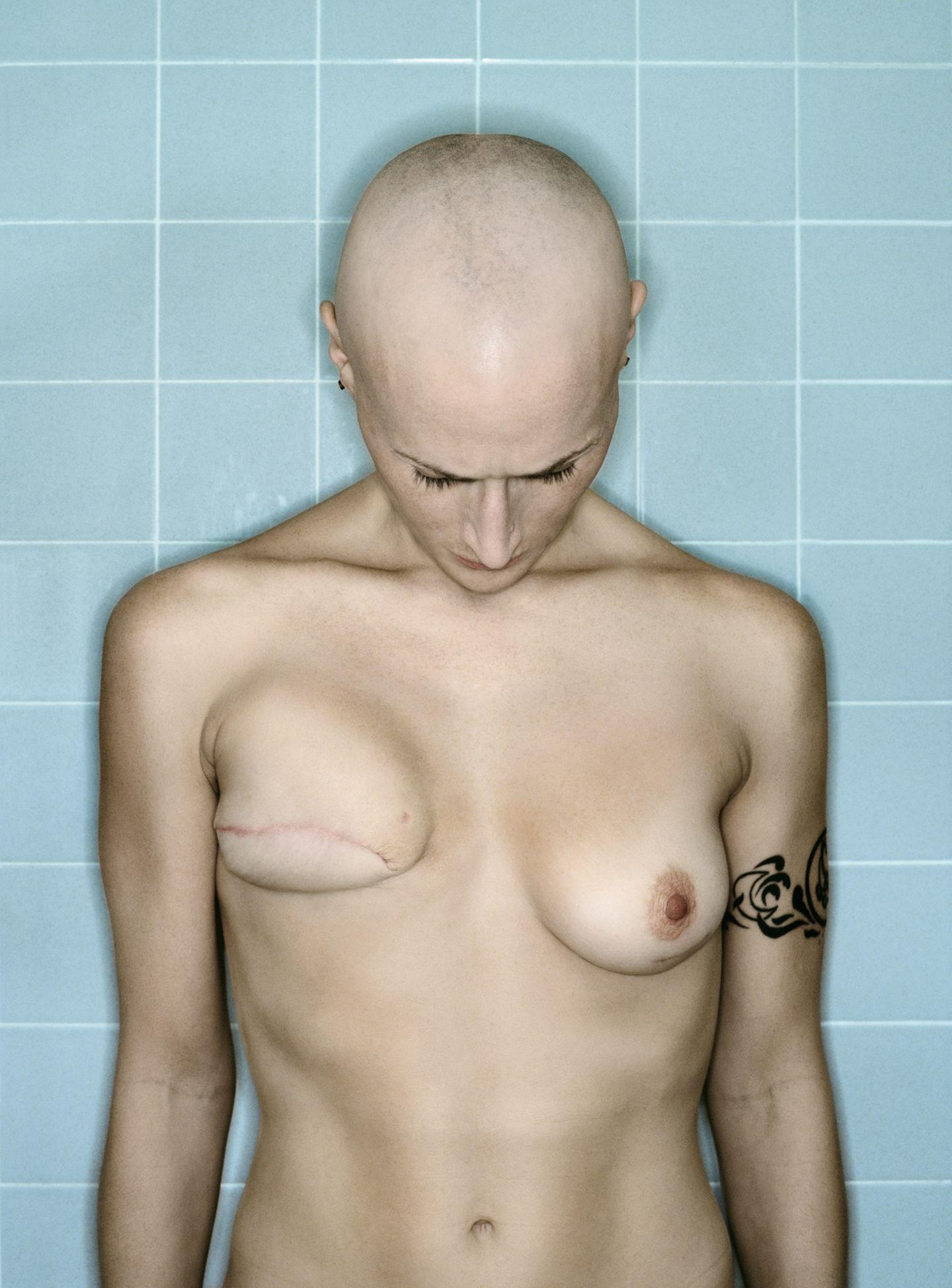 Selbstporträts: Von der Diagnose bis zur Brustamputation
