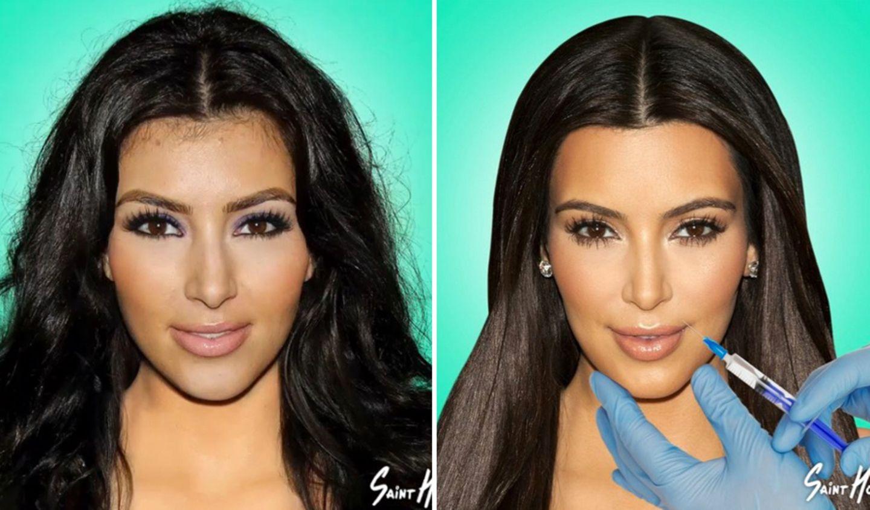 So sahen die Kardashians vor ihren OPs aus