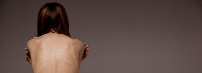 8 Dinge, die ihr über Essstörungen wissen solltet