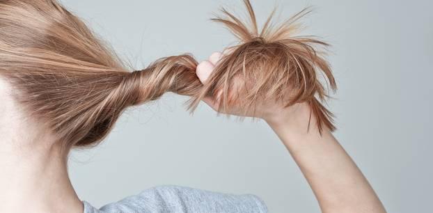 Haarausfall - das kann man dagegen tun