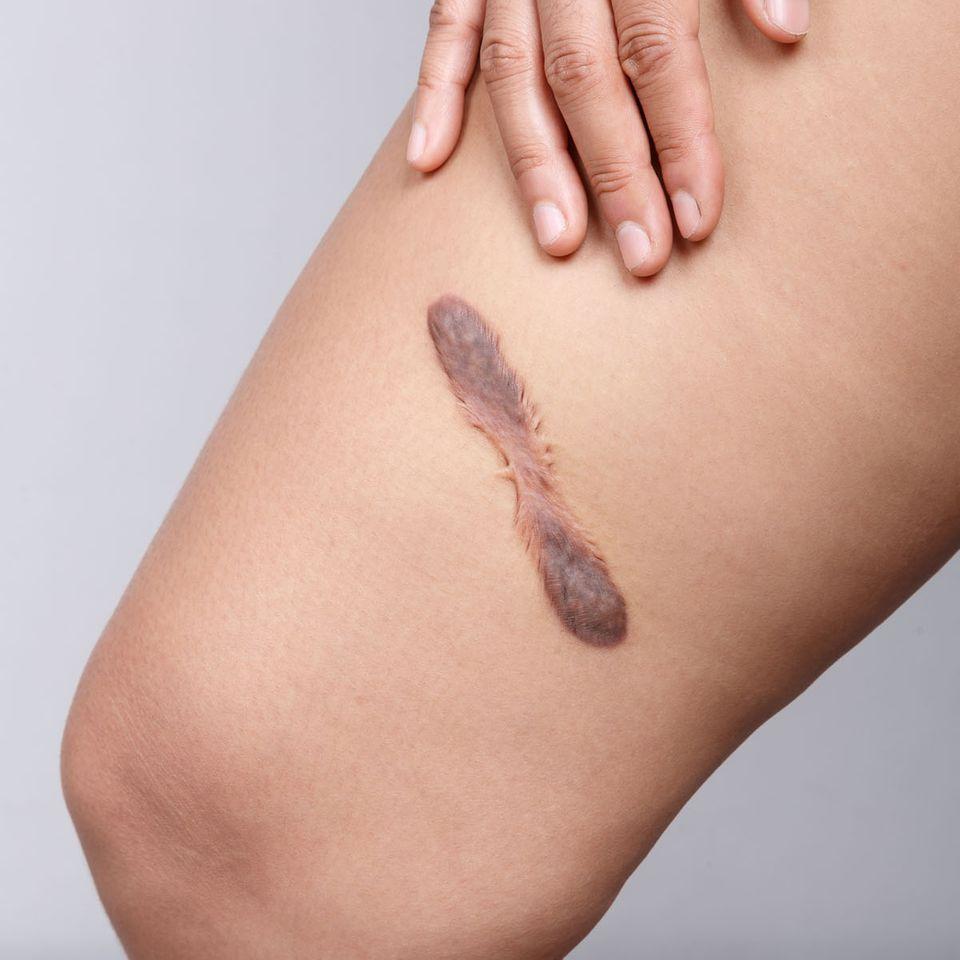 Was hilft gegen Narben? Frau zeigt Narbe am Oberschenkel