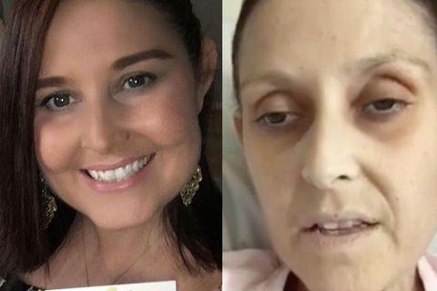 Fabelhaft trotz Krebs im Endstadium: Wie Lisa anderen Frauen Mut macht
