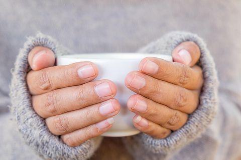 Raynaud-Syndrom als Ursache für kalte Hände