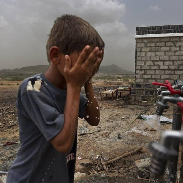 Cholera im Jemen