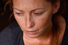 entdeckt Sommersprossen in ihrem Dekolleté - der Arzt diagnostiziert Brustkrebs