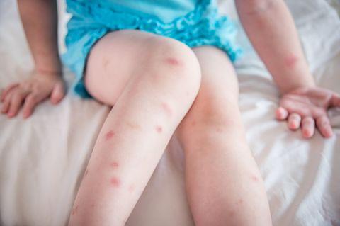 Was hilft gegen Mückenstiche?