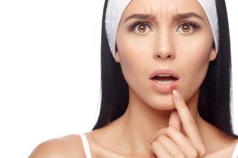 Was tun gegen Herpes? - DAS hilft effektiv gegen die Bläschen!