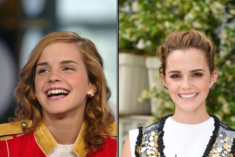 Emma Watson mit alten und neuen Zähnen