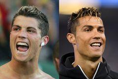 Christiano Ronaldo mit alten und neuen Zähnen