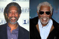 Morgan Freeman mit Zähnen im Vorher/Nachher-Vergleich