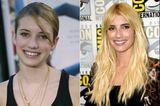 Emma Roberts mit Zähnen im Vorher/Nachher-Vergleich