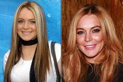 Lindsay Lohan mit Zähnen im Vorher/Nachher-Vergleich