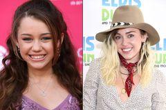 Miley Cyrus mit Zähnen Vorher/Nachher